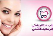 اصلاح طرح لبخند دکتر سعید هاشمی