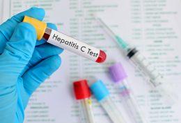 چگونه ابتلا به بیماری هپاتیت c را تشخیص دهیم
