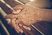 پیشگیری از پیدایش لکه های قهوه ای بر روی پوست