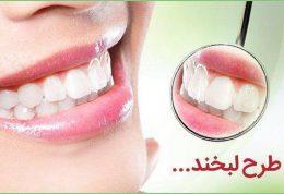 خدمات دندانپزشکی زیبایی و ترمیمی دکتر صدرا مقدم