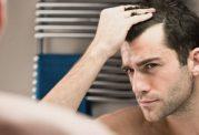 علل ریزش مو کدامند؟ آیا مو های سالمی دارید؟