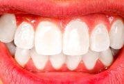سایش دندان ها و دندان قروچه