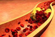 چگونه کلسترول خوب خون را افزایش دهیم؟