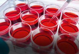 نحوه تشخیص بیماری ها با شمارش کامل خون یا CBC