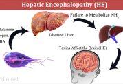 انسفالوپاتی کبدی چگونه در بدن پدید می آید؟
