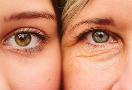 بررسی علل افتادگی چشم و روش های درمان آن
