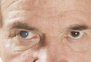 دلایل بخار گرفتن چشم ها چیست؟