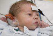 هیدروپس فتالیس یا تجمع مایع در اندام های جنین چیست؟