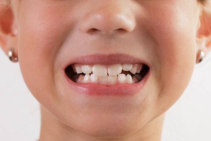 دندان قروچه چه دلایلی دارد؟