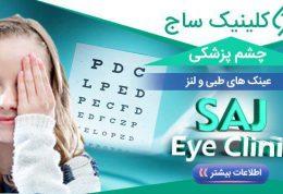 کلینیک چشم پزشکی ساج