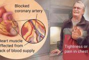افزایش ریسک سکته مجدد با توقف مصرف استاتین