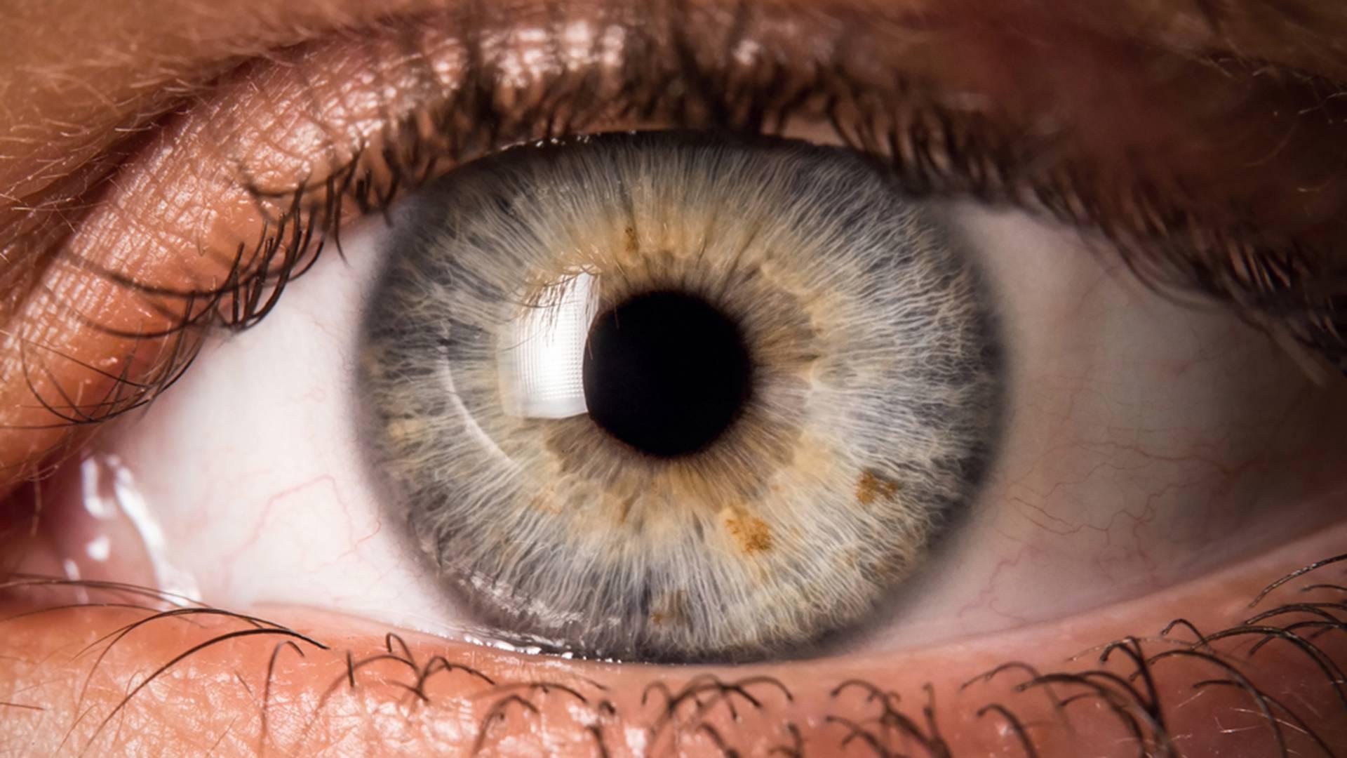 عمل ویترکتومی چیست؟ چه تاثیری در بهبود بینایی دارد؟