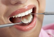 عصب کشی دندان یا اندودنتیکس