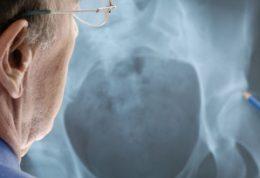 در مورد بیماری پوکی استخوان چه می دانید؟