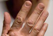 اصلی ترین اختلالات مفصلی انگشت و روش های درمان آن