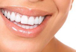انجام ارتودنسی عاملی موثر بر سلامت دندانها