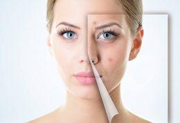 روش های درمان جوش های صورت