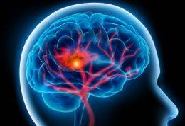مهار سکته مغزی با برخی ترفندهای ساده