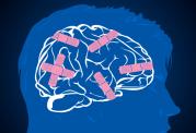 فراموش کاری با آلزایمر یکی نیست! روش های درمان فراموش کاری