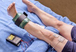 الکترو درمانی