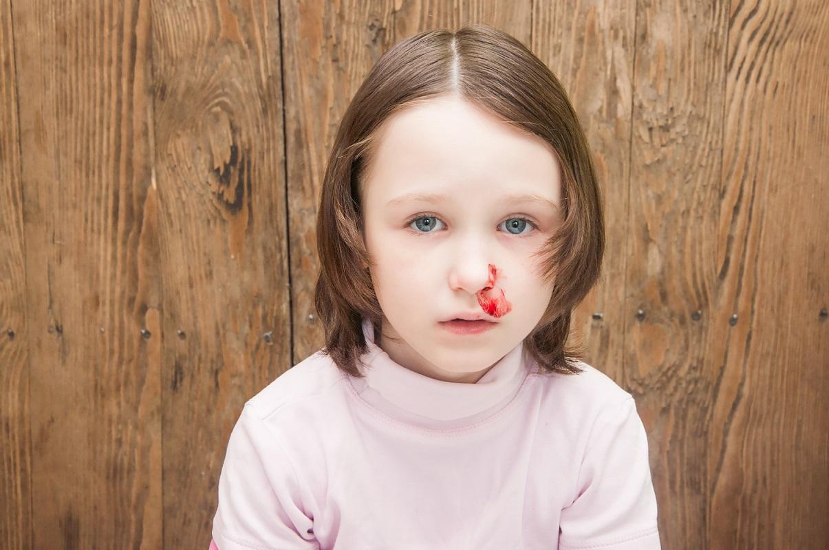 مهم ترین اقدامات در شکستگی بینی کودکان