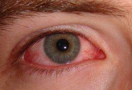 چگونه مانع از عفونت چشم ها شویم؟