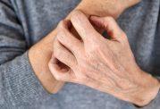 راهکارهای موثر خانگی برای درمان کهیر