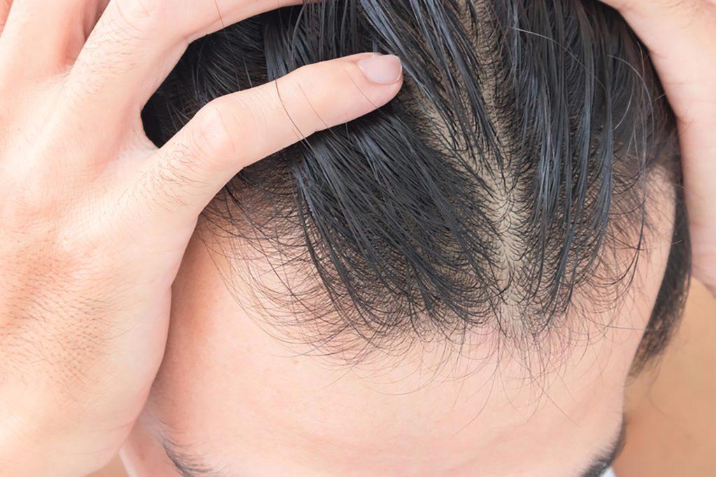 مقابله با ریزش مو علل ریزش مو ریزش مو در پاییز ریزش مو دلایل ریزش مو درمان ریزش مو پیشگیری از ریزش مو
