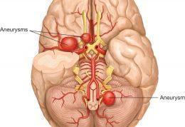 خطر آنوریسم مغزی برای سلامتی