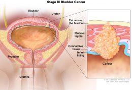 مقابله با یک سرطان خطرناک مردانه