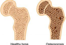 تمرینات ورزشی خطرساز برای مبتلایان به پوکی استخوان