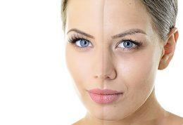 لیزر و جوانسازی پوست صورت
