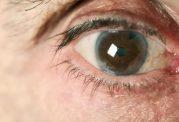 مقابله با آب سیاه چشم