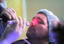 جراحی بینی با تامپون
