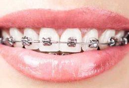 دکتر صابر گوگانی متخصص ارتودنسی دندان