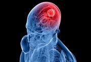 تومور مغزی چه نشانه هایی دارد؟