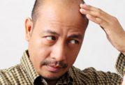 پلاسمای غنی از پلاکت برای تقویت موی سر
