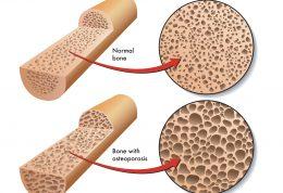 درمان های غیر علمی برای پوکی استخوان