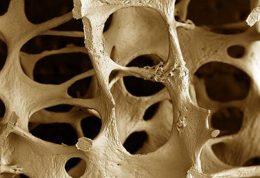 پیشگیری از کاهش تراکم استخوان در جوانی