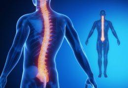 درمان ام اس با استفاده از این تمرینات ورزشی