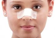 ورم بینی بعد از عمل و روش های کاهش آن از زبان دکتر مقیمی