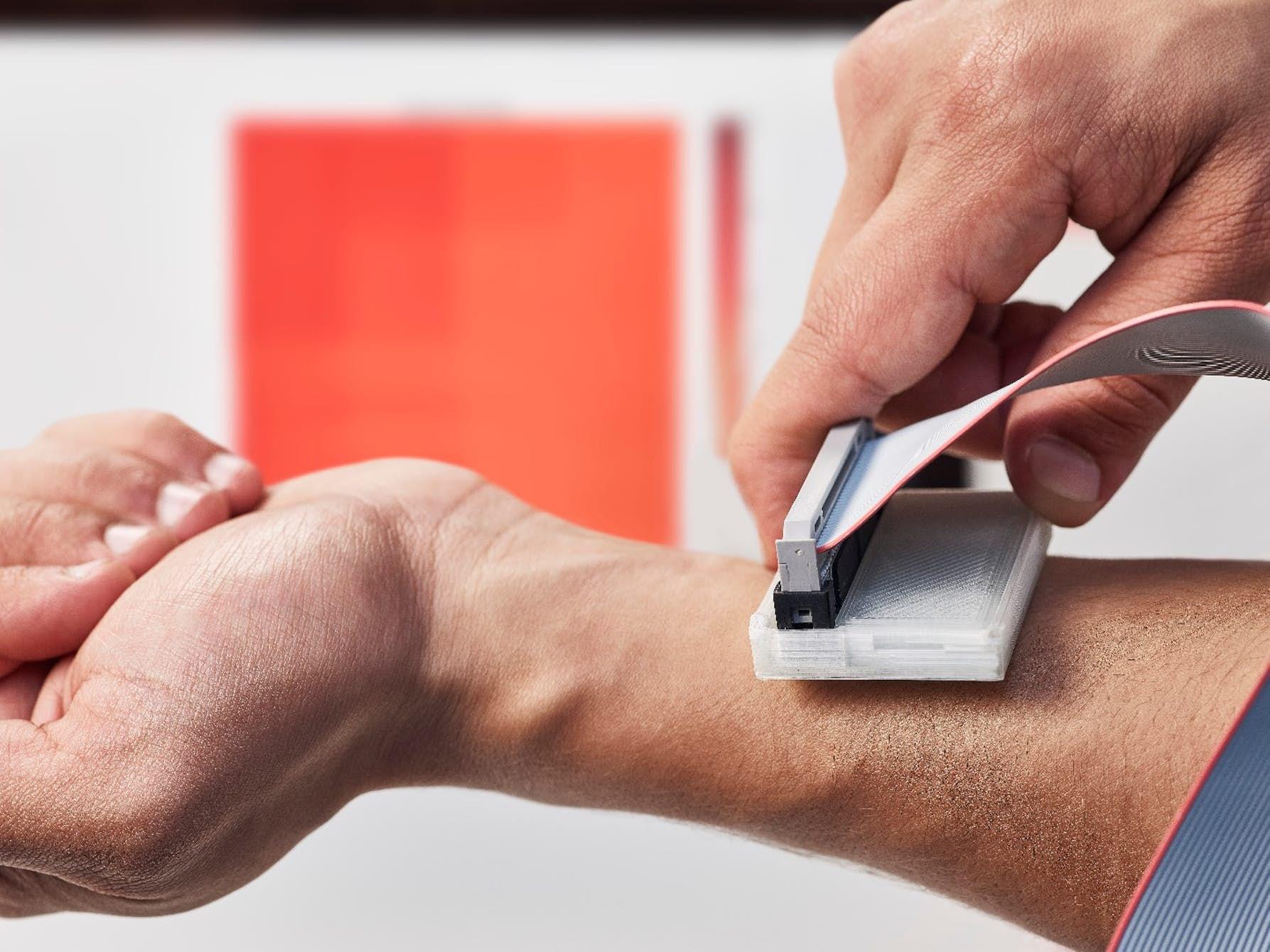 سرطان پوست را با این دستگاه شناسایی کنید