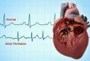 اطلاعاتی در مورد بیماری قلبی فیبریلاسیون دهلیزی