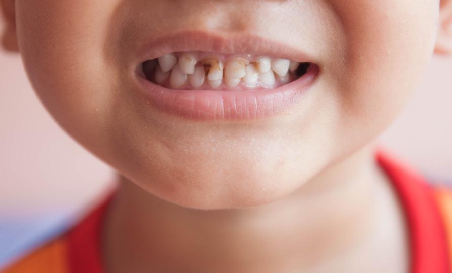 سلامت دهان حفظ سلامت دهان پیشگیری از پوسیدگی دندان پوسیدگی دندان بیماریهای دهان بیماری دهان