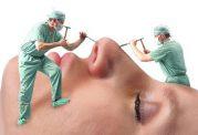 نبایدهای بعد از عمل بینی از زبان دکتر سهرابی