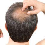 کاشت مو قطعی ترین روش درمان ریزش مو از نظر دکتر رحمانی