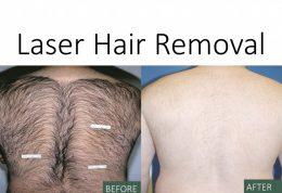 روش لیزر موهای زائد چگونه است؟
