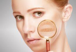 9 راه برای جلوگیری از ترک خوردن و خشکی پوست در زمستان درپیش رو