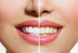 روش های رفع تیرگی و زردی دندان
