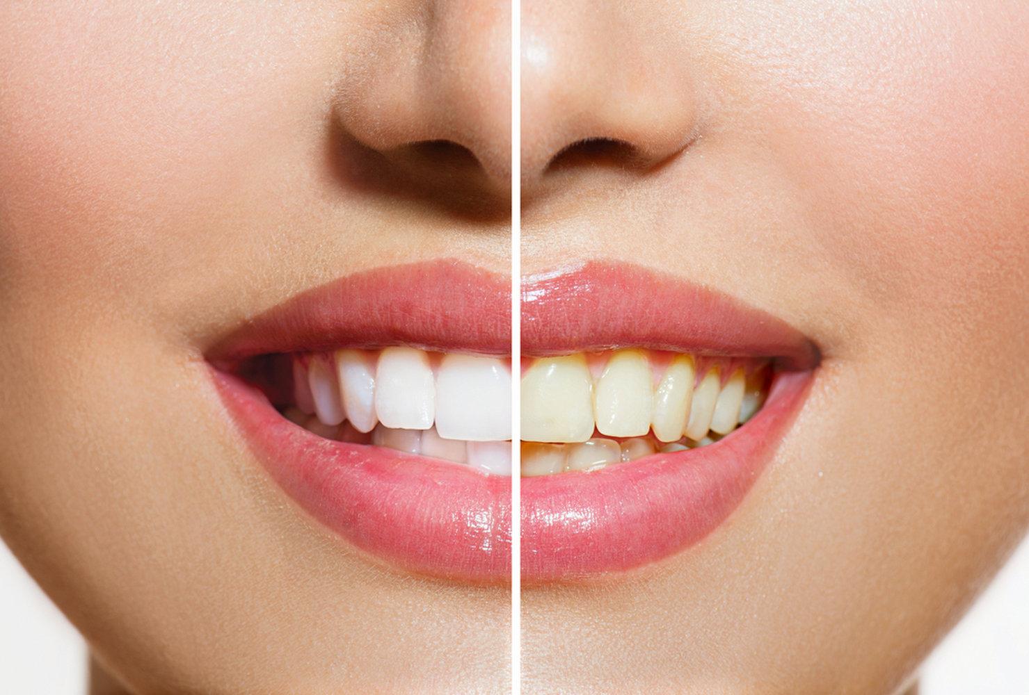 سفید ماندن دندان زردی دندان زرد و تیره شدن دندان رنگ دندان تیرگی دندان تغییر رنگ دندانها